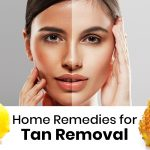 Top 10 Home Remedies for Tan Removal