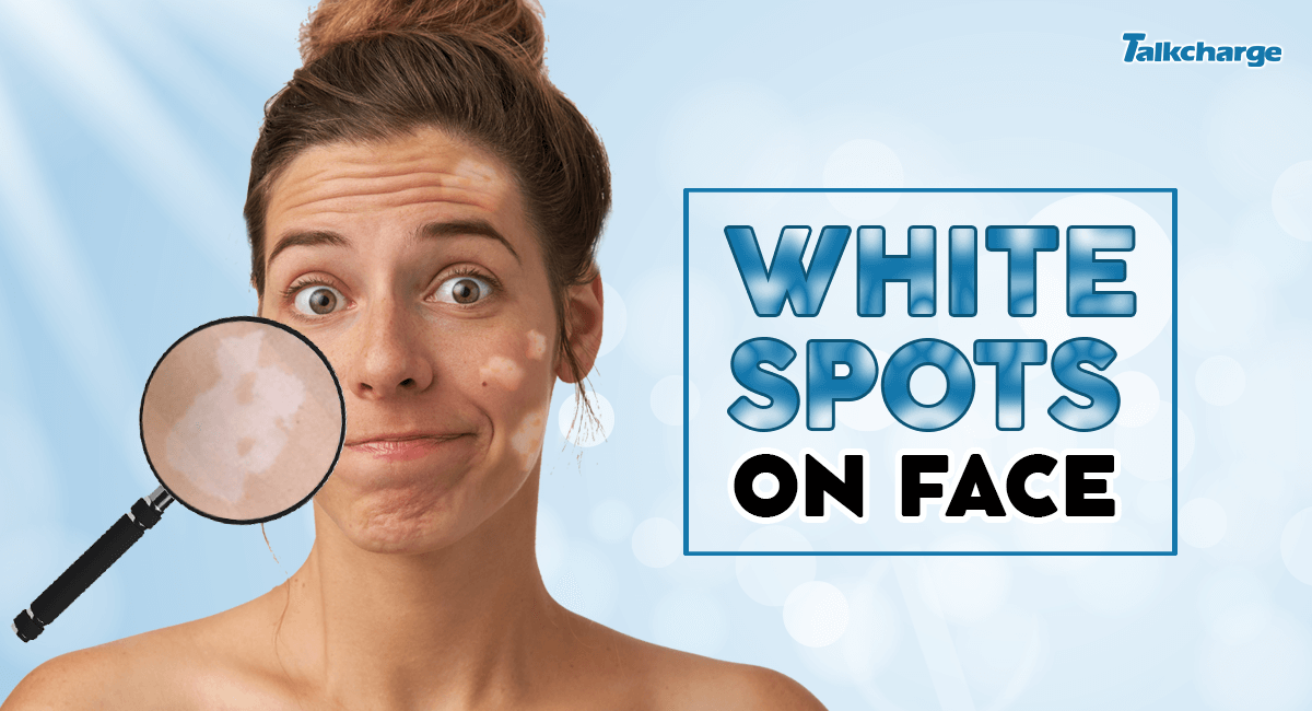 white spots on face